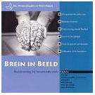 Kennis over werking van onze hersenen stap verder